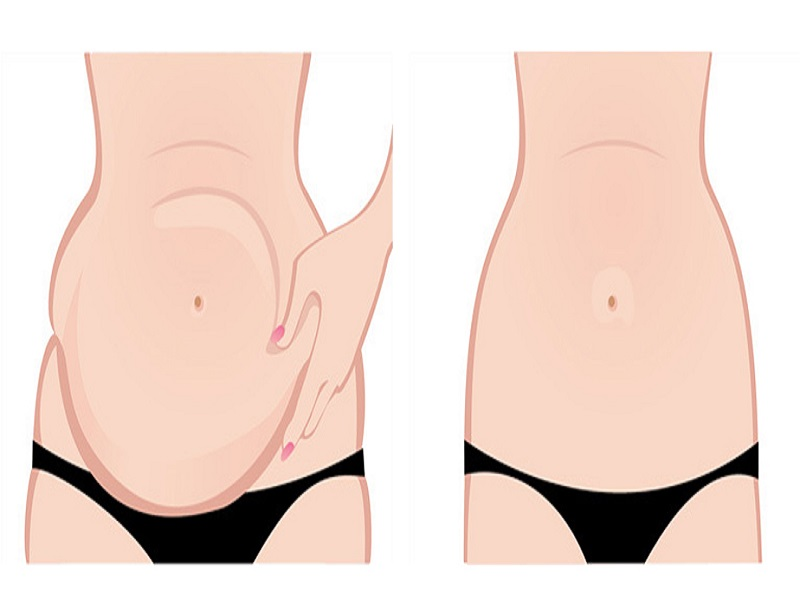 Abdominoplastie 0