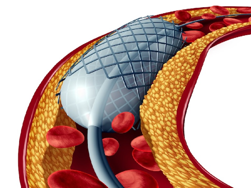 Coronary Angioplasty 1