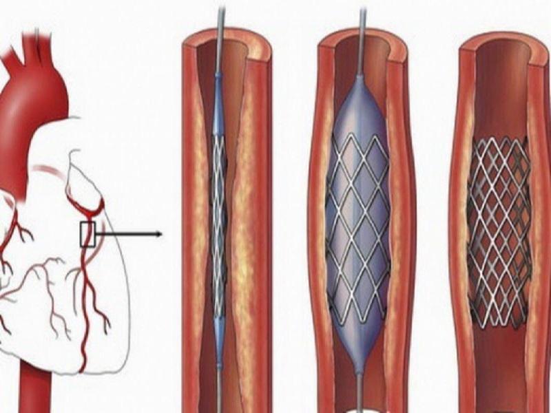 Coronary Angioplasty 3