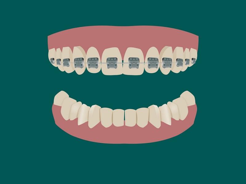 تقويم الأسنان 0