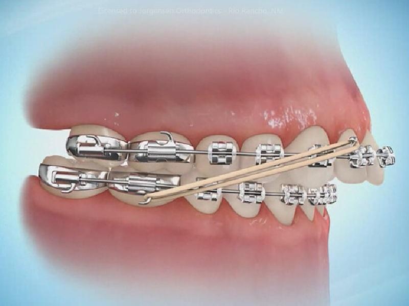 تقويم الأسنان 1