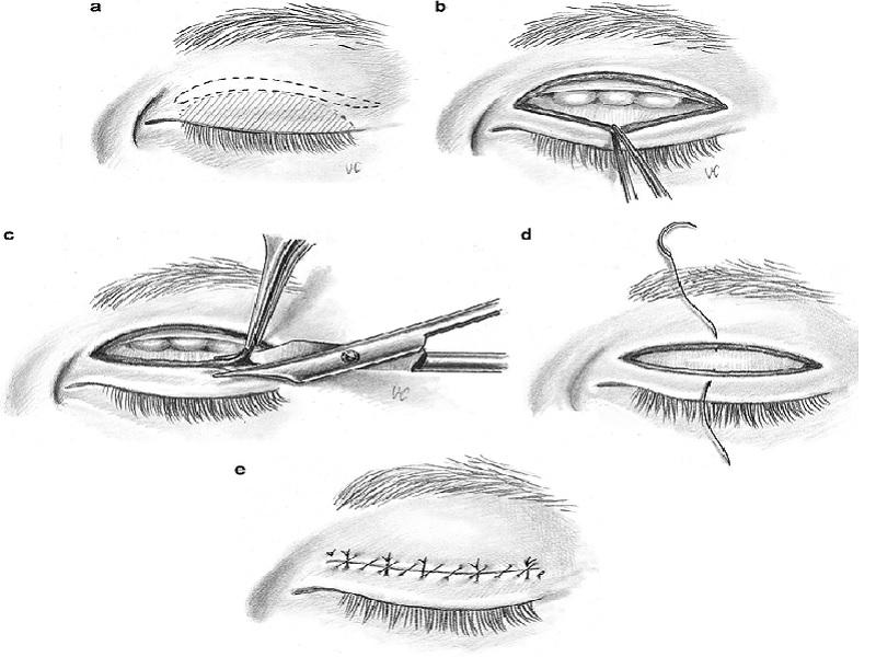 Unilateral blepharoplasty 2