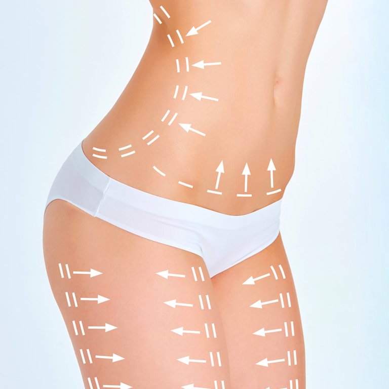 Body lift Surgery