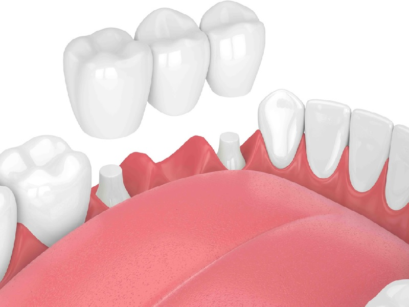 Bridge Dentaire 0