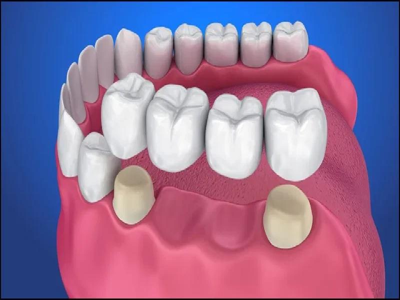 Bridge Dentaire 1