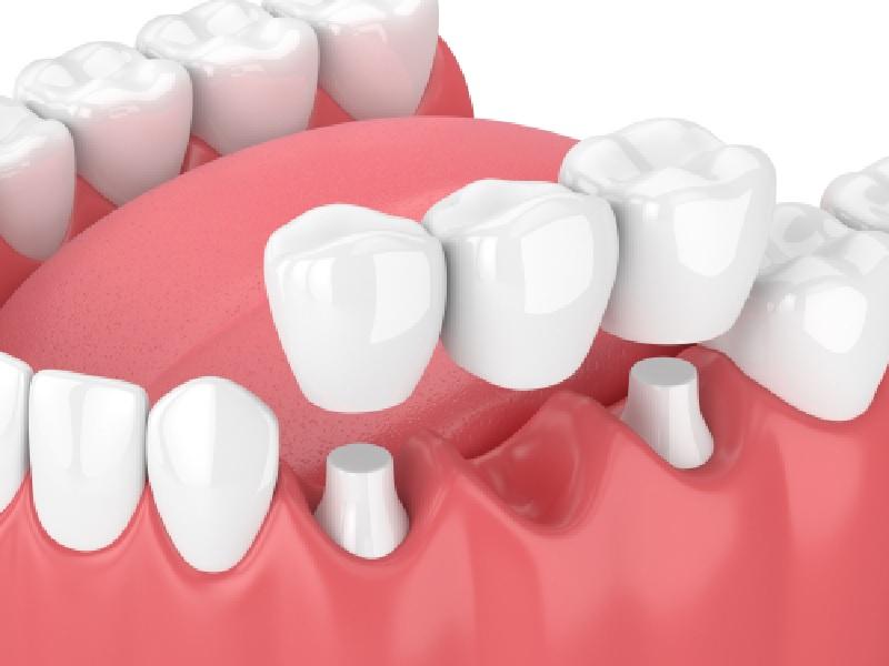 Bridge Dentaire 2