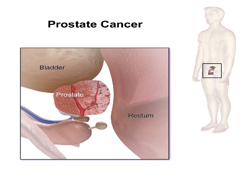 Cancer de la Prostate 3