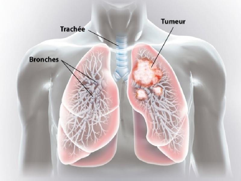 سرطان الرئة 3