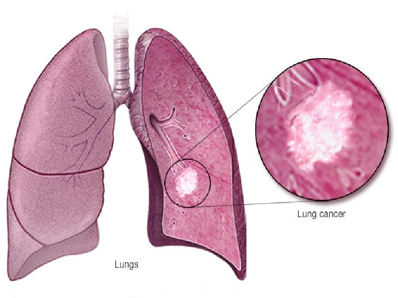 سرطان الرئة 4