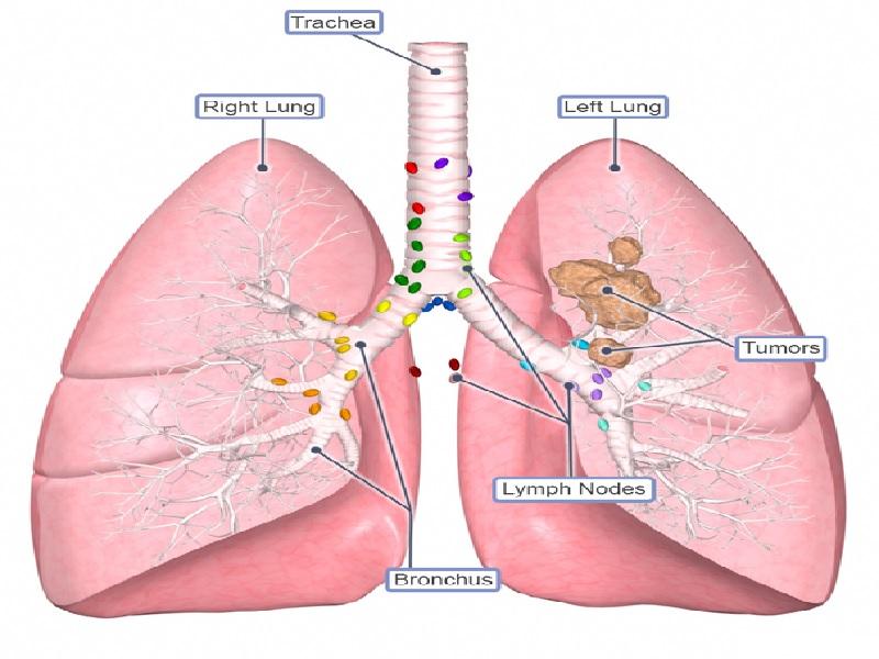 سرطان الرئة 5