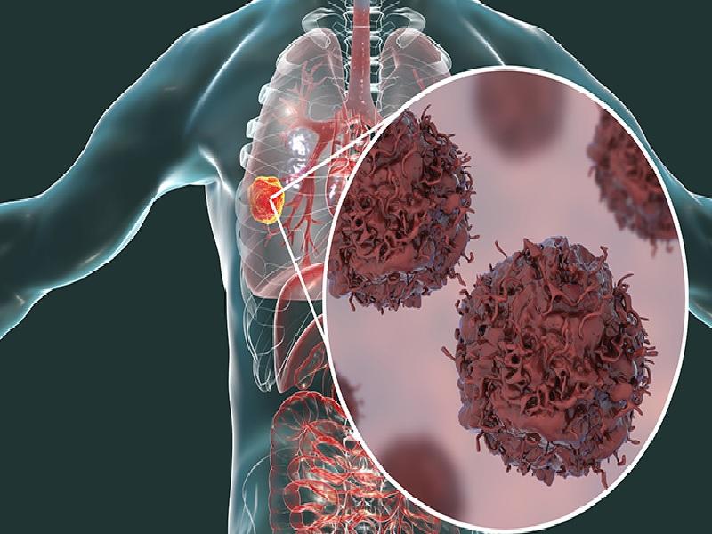 سرطان الرئة 1