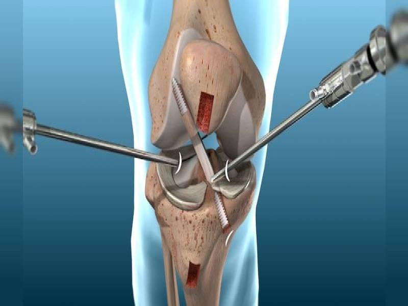 Chirurgie de genou 1