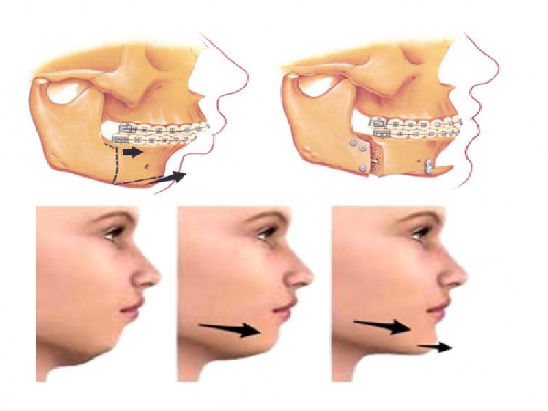 Chirurgie de la mâchoire 1