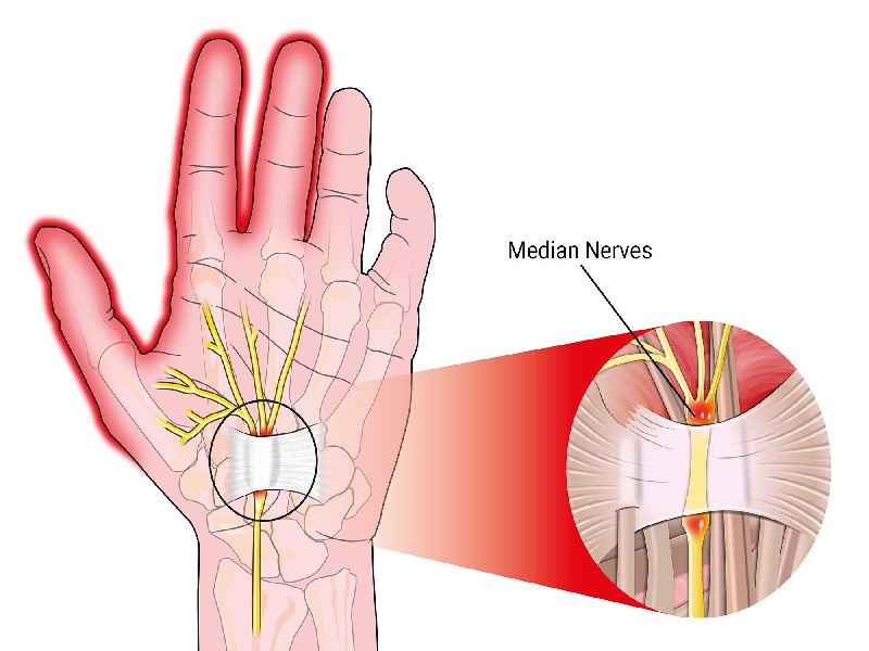 Surgery of the Carpal Tunnel 2