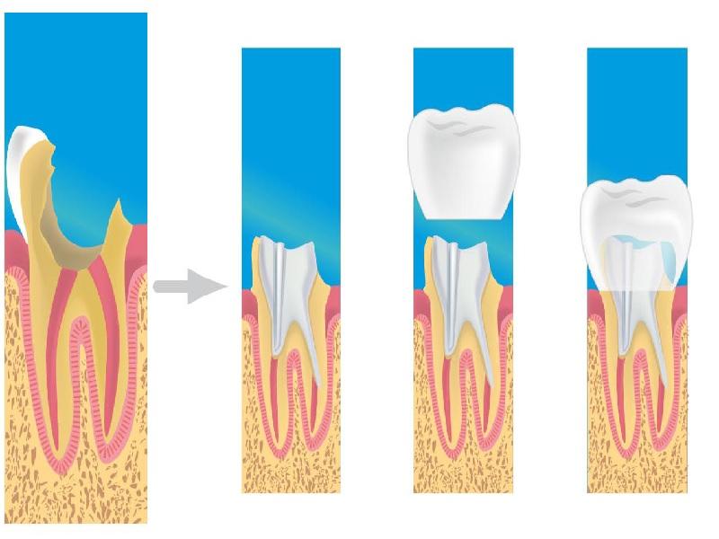 تاج الأسنان 2