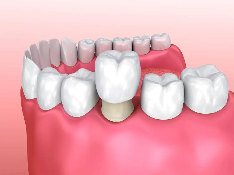 تاج الأسنان 0