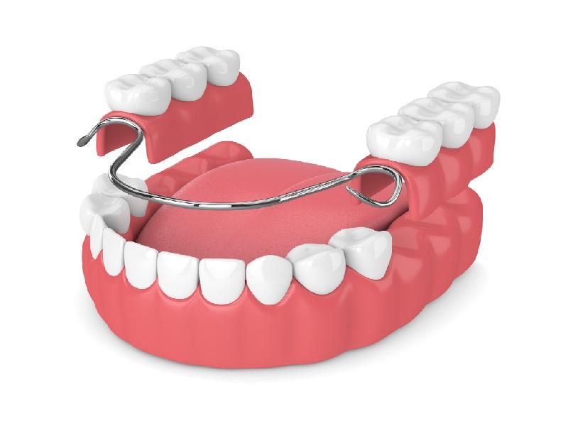 طقم الأسنان 0