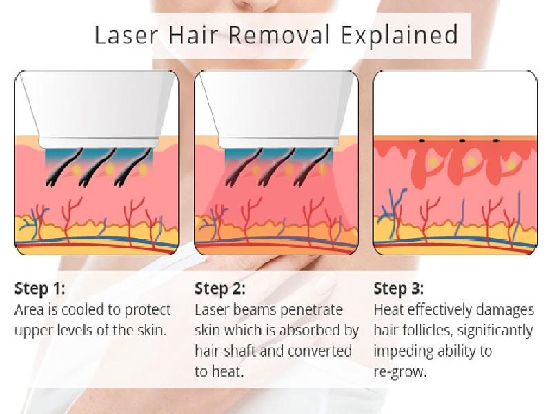 Épilation au Laser 1