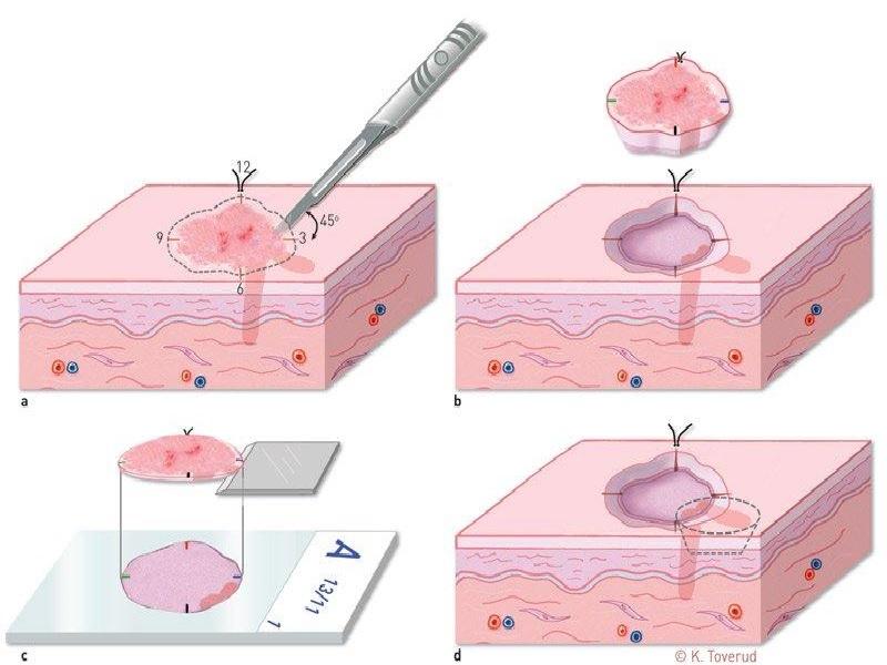 استئصال الورم الجلدي 0