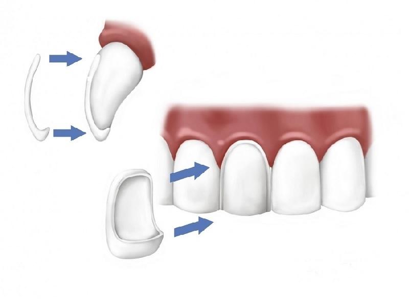 Dental veneers  Turkey