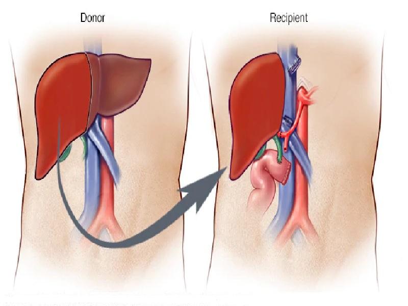 Liver transplant 2