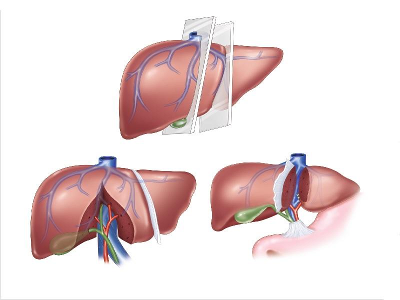 Liver transplant 0