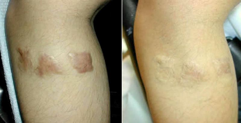 Skin graft (burns)