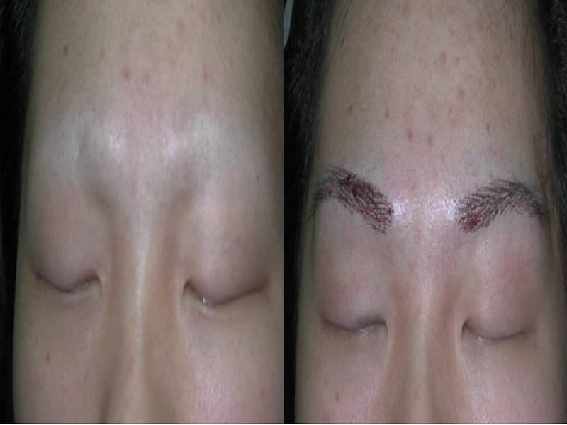 Eyebrow transplant in Turkey & Istanbul, Price from 1500
