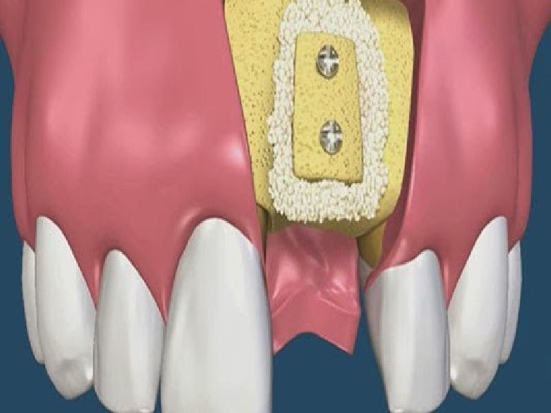 Greffe osseuse 2