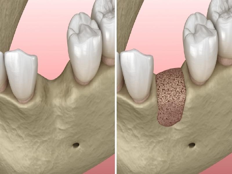 Greffe osseuse 3