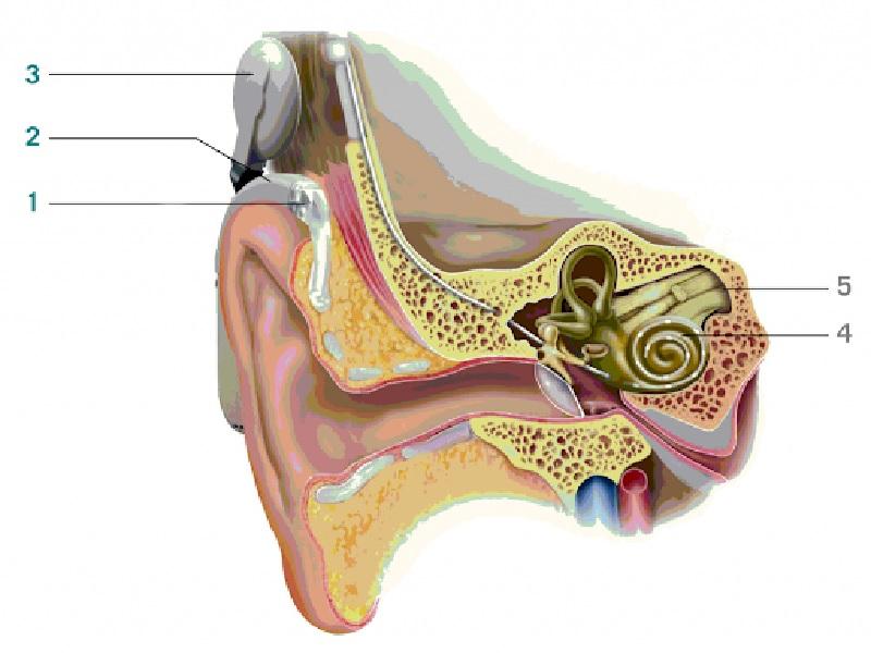 Implant Cochléaire 2
