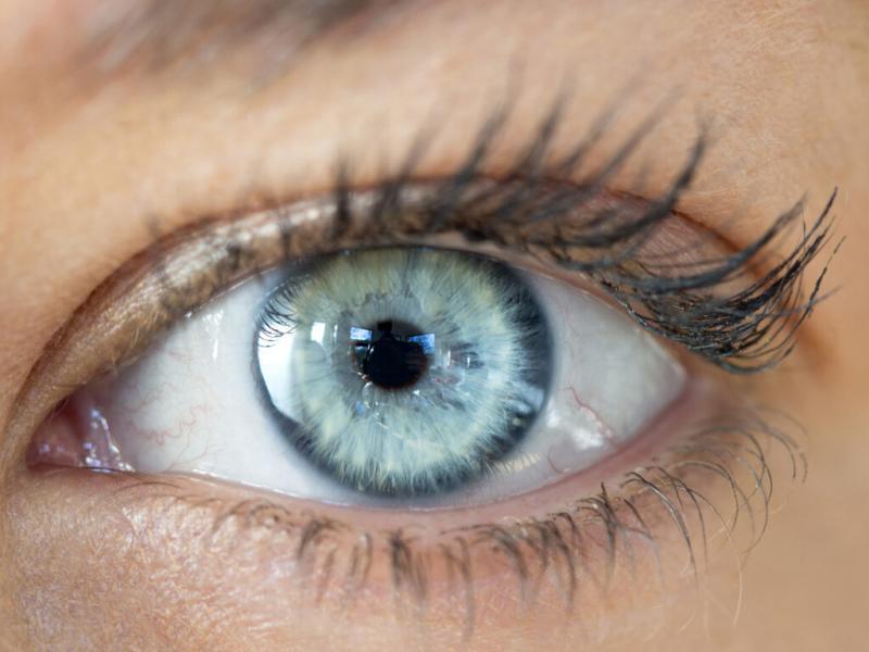 Intraocular Lens Implant  Turkey