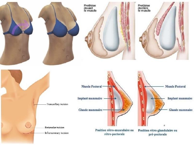 Implants Mammaires 2