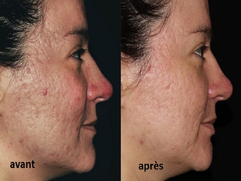 PRP injection for face