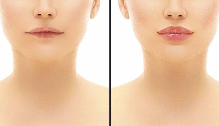 Remplissage des lèvres