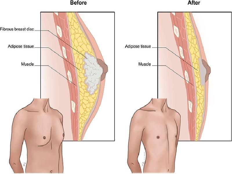 Gynecomastia (with liposuction) 3 Turkey