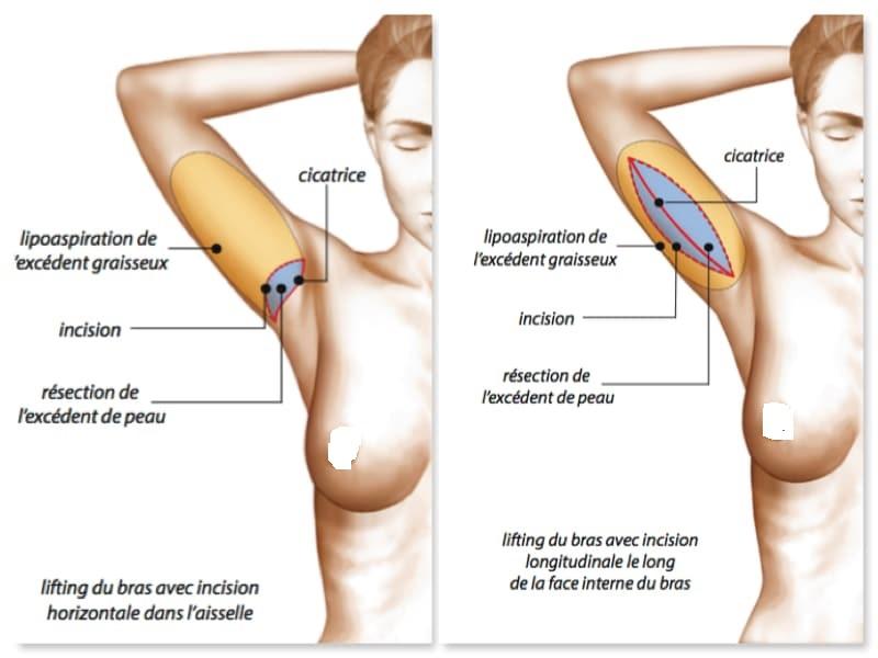 Arm lift 1