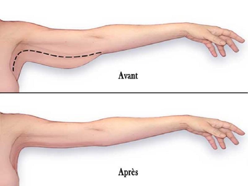 Arm lift 0