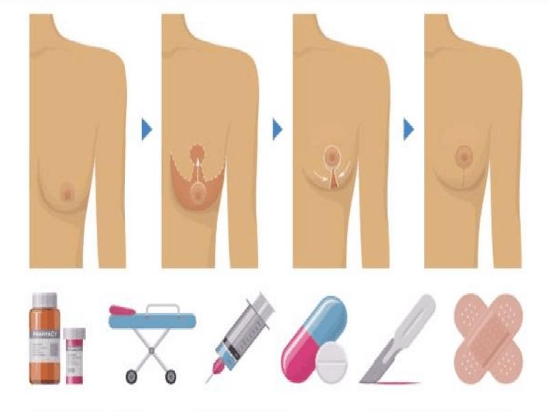 Breast lift 0