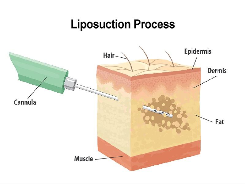 Liposuccion Laser 0