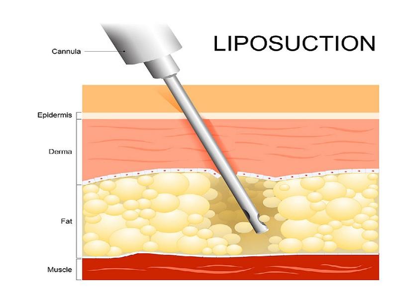 Liposuccion Laser 1