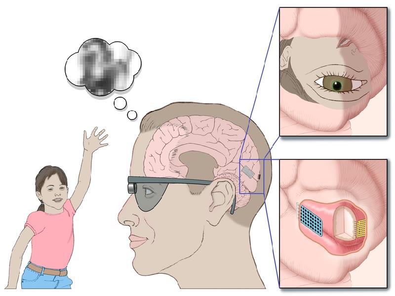 Oeil bionique 1
