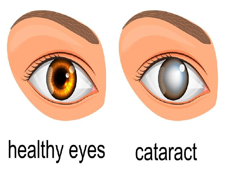 Opération de la Cataracte 2