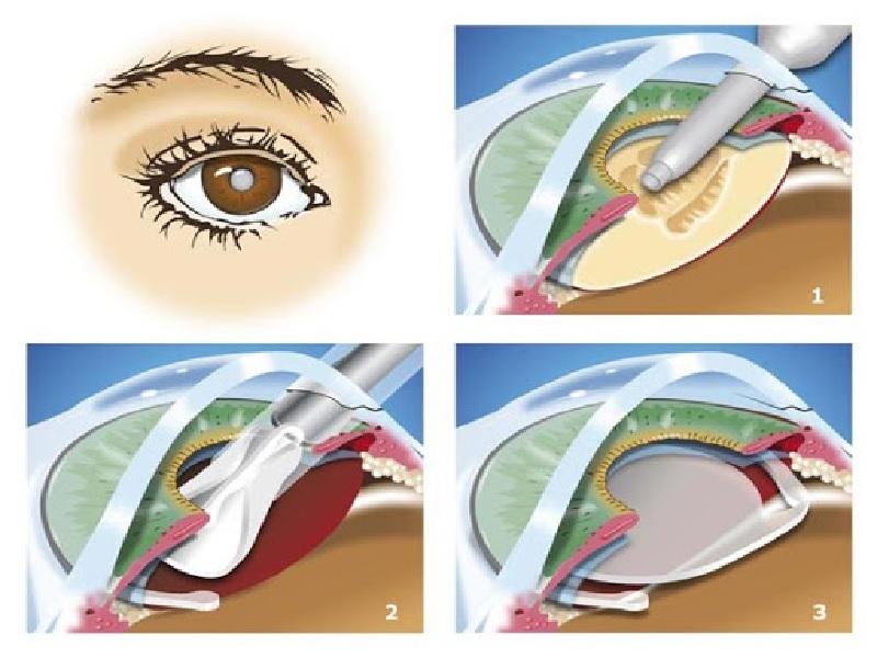 Opération de la Cataracte 0
