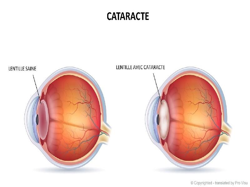 Opération de la Cataracte 1