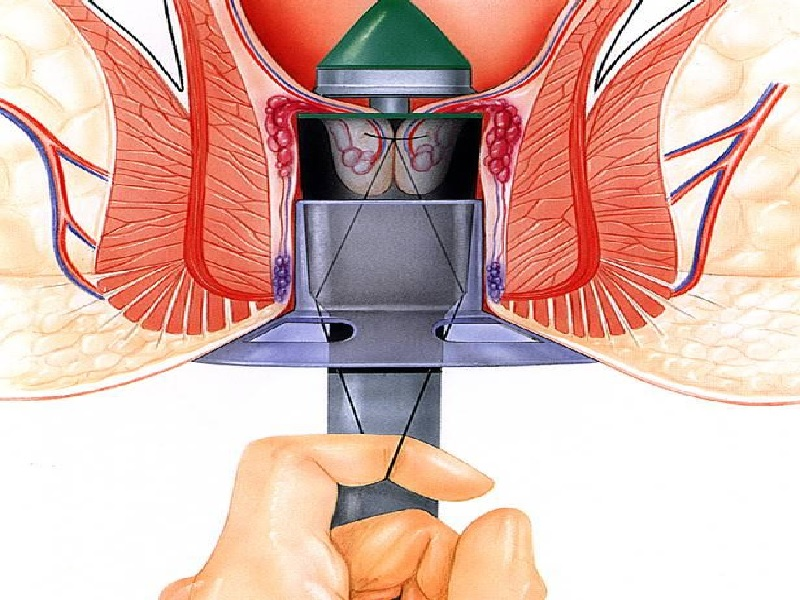 Opération des hémorroïdes 1