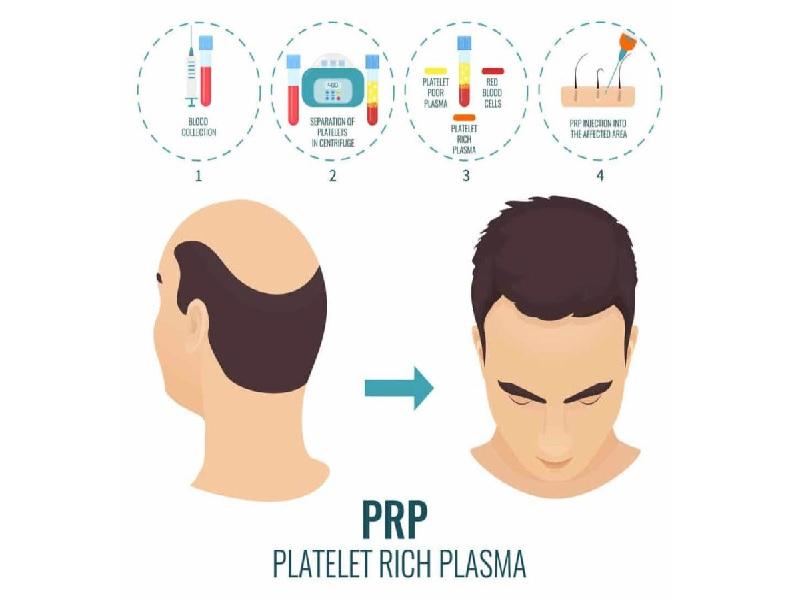 PRP for Hair Loss 0
