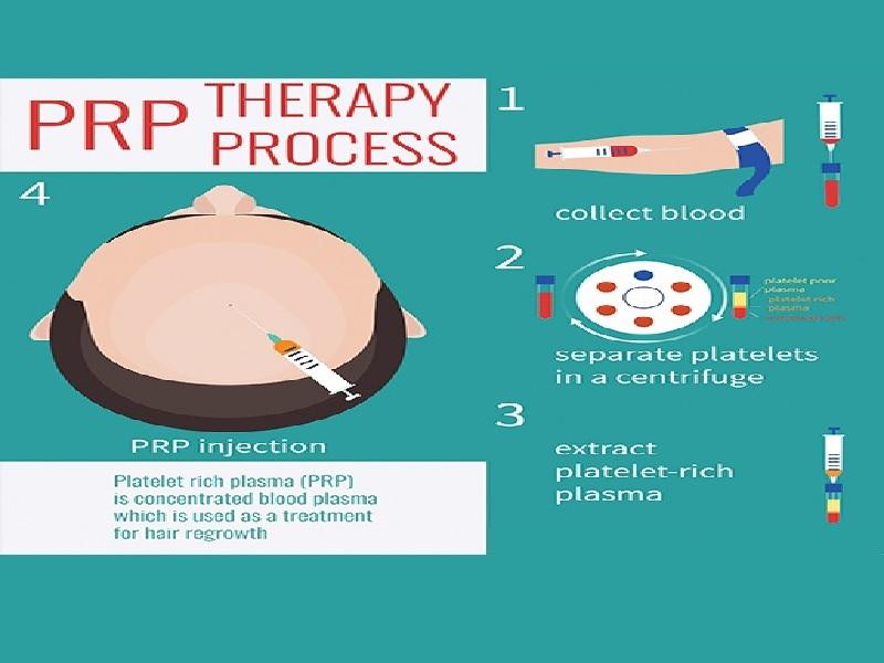PRP for Hair Loss 1