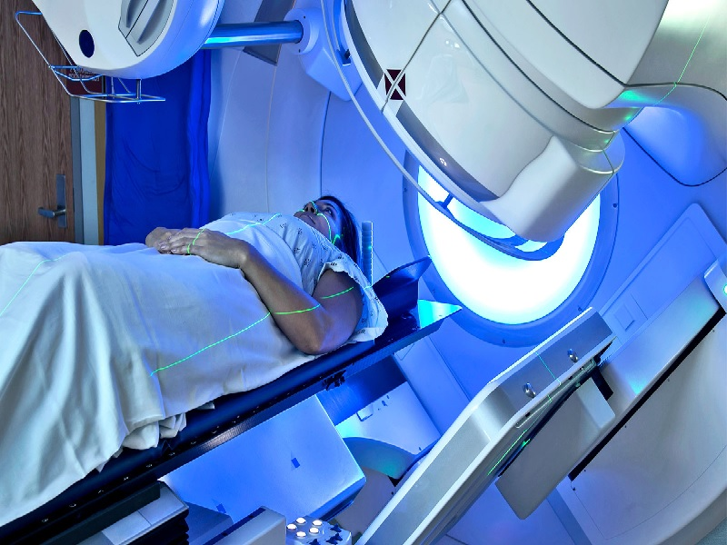 Radiotherapy 4