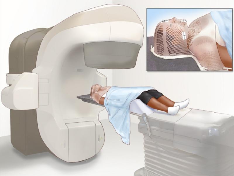 Radiotherapy 2